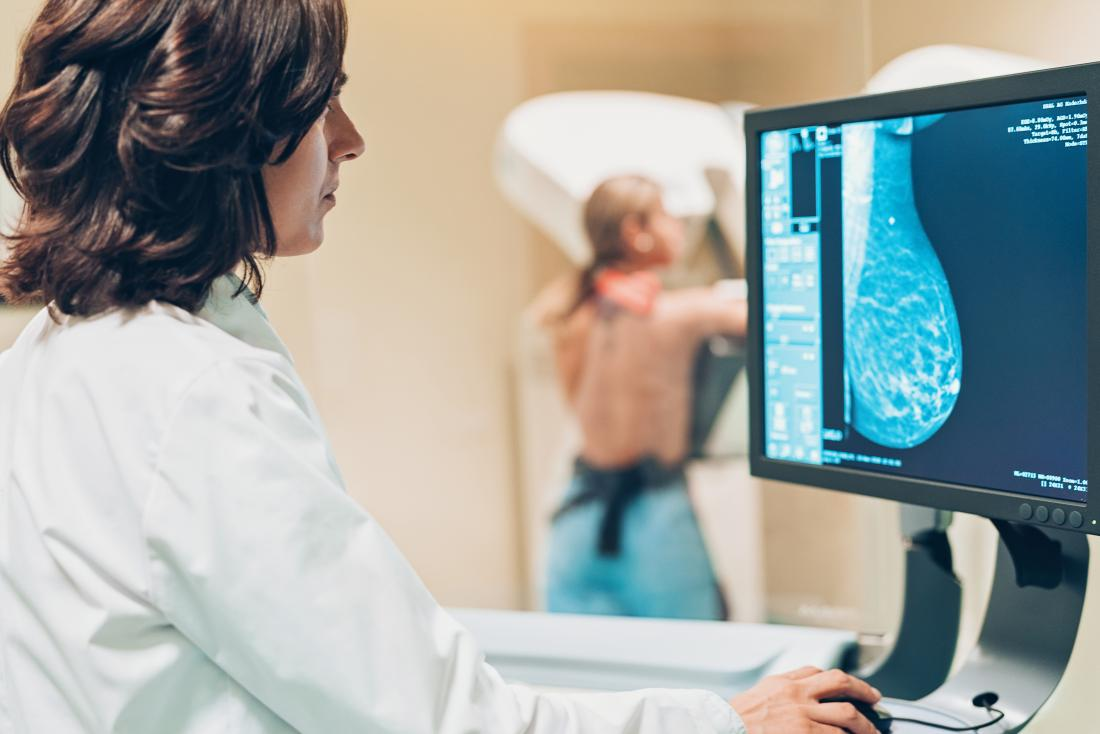 a doctor looking at results from a 3d mammogram